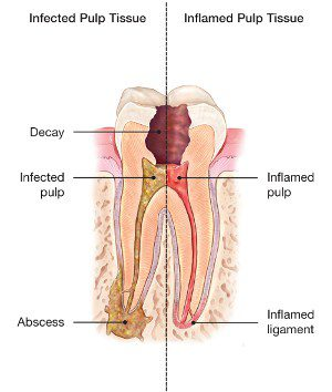Root-canal-image 1
