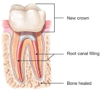 endodontic-retreatment-root-canal-crown